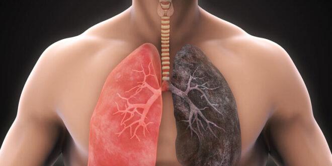 Insilico Medicine encontró tratamiento para enfermedades pulmonares en tiempo récord
