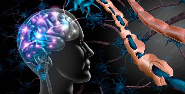 Inteligencia artificial identifica nuevos subtipos de esclerosis múltiple